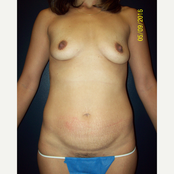 36  year old woman treated with Silicone Breast Augmentation before 3201732