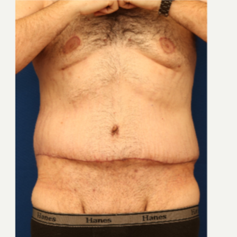 25-34 year old man treated with Tummy Tuck after 3685790