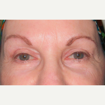 Eyelid Surgery (Blepharoplasty) after 3831536