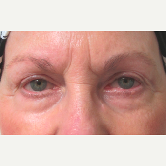 Eyelid Surgery (Blepharoplasty) before 3831536