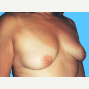 Breast Lift with Implants before 3748908