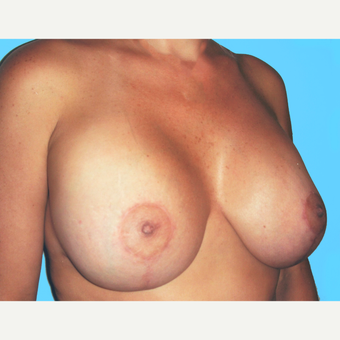Breast Lift with Implants after 3748908