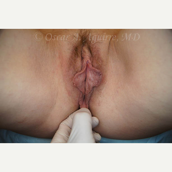 50 yo female had Labiaplasty of Labia Minora and Clitoral Hood Reduction with Clitoropexy before 3065160