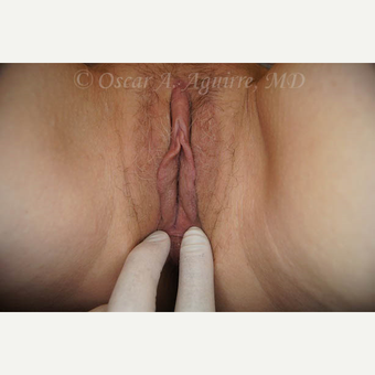 50 yo female had Labiaplasty of Labia Minora and Clitoral Hood Reduction with Clitoropexy after 3065160