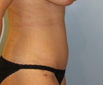 25-34 year old woman treated with Tummy Tuck after 3321856