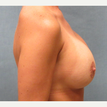 30 yr old female with breast implant exchange for larger after 3174734