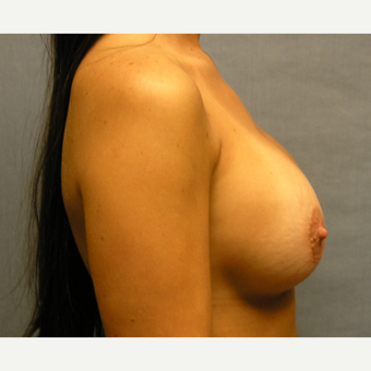 30 yr old female with breast implant exchange for larger before 3174734