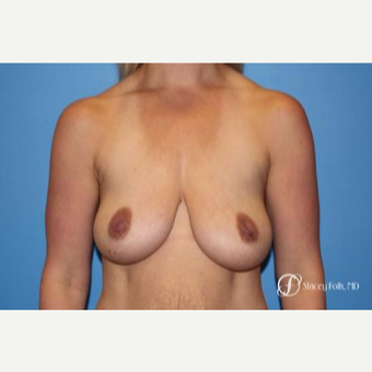 25-34 year old woman treated with Breast Lift before 2976868