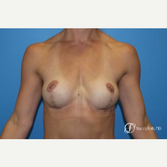25-34 year old woman treated with Breast Lift after 2976868