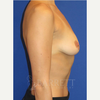 25-34 year old woman treated with Breast Implants before 3584760