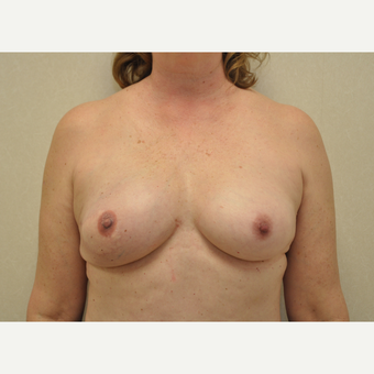 45-54 year old woman treated with Breast Reconstruction after 3127906