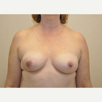 45-54 year old woman treated with Breast Reconstruction before 3127906