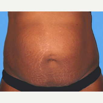 Tummy Tuck before 3813588