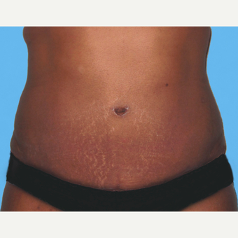 Tummy Tuck after 3813588