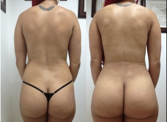 Liposculpture before 930830