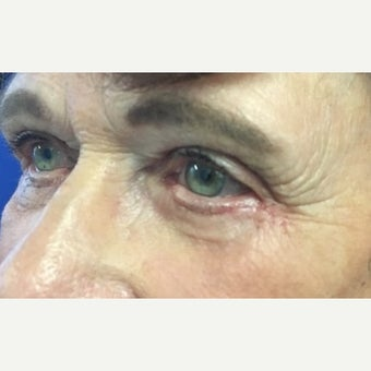 65-74 year old woman treated with Eye Bags Treatment after 2588576