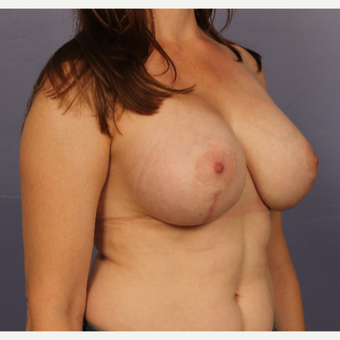 Breast Lift with gummy bear implants after 3645967