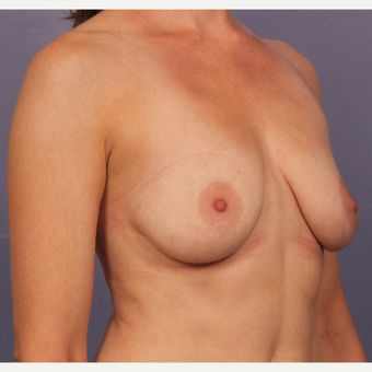 Breast Lift with gummy bear implants before 3645967