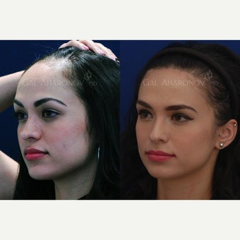 Forehead Reduction Surgery Hairline Lowering Surgery 6 years after