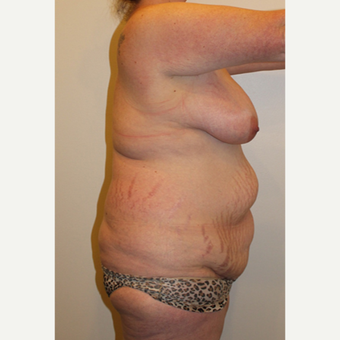 35-44 year old woman treated with Mommy Makeover before 2999817