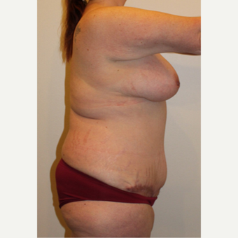 35-44 year old woman treated with Mommy Makeover after 2999817