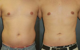 Liposuction before 529903
