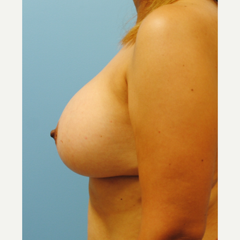 B to D cup.  430 cc ultra high profile silicone breast augmentation after 3422830