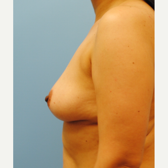 B to D cup.  430 cc ultra high profile silicone breast augmentation before 3422830