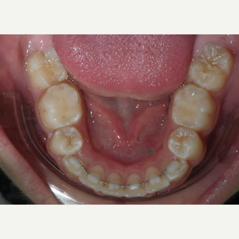 17 or under year old woman treated with Braces after 3658178