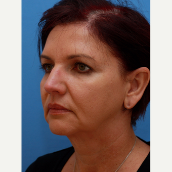 "Woman treated with ""Maintenance Facelift"" before 3372808"