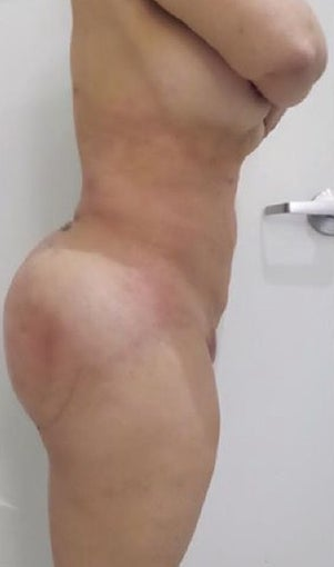 25-34 year old woman treated with Slim Lipo after 3496222