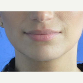 35-44 year old woman treated with Lip Augmentation after 3240244