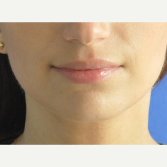 35-44 year old woman treated with Lip Augmentation before 3240244