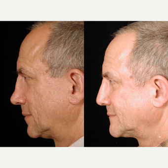 55-64 year old man treated with Rhinoplasty after 3659023