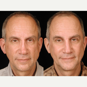 55-64 year old man treated with Rhinoplasty before 3659023
