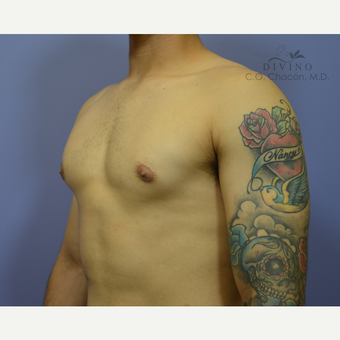 18-24 year old man treated with Male Breast Reduction after 3421532