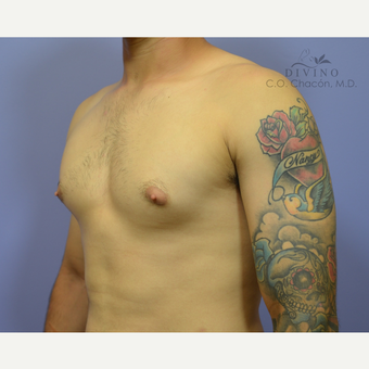 18-24 year old man treated with Male Breast Reduction before 3421532