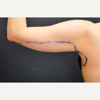 25-34 year old woman treated with Laser Liposuction to arms before 3781054