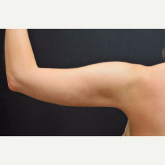 25-34 year old woman treated with Laser Liposuction to arms after 3781054