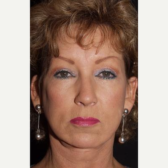 55-64 year old woman treated with Facelift after 3481264