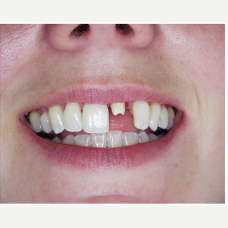 45-54 year old woman treated with Dental Implants before 1995981