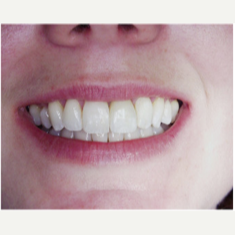45-54 year old woman treated with Dental Implants after 1995981