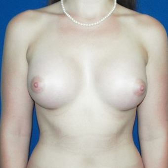 25-34 year old woman treated with Breast Augmentation after 3131726