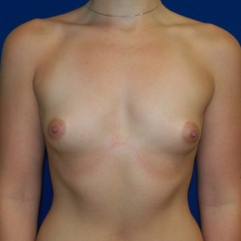 25-34 year old woman treated with Breast Augmentation before 3131726