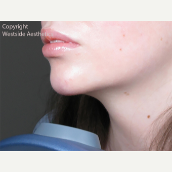 Juvederm Chin and Lip Enhancement after 2972534