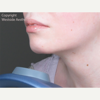 Juvederm Chin and Lip Enhancement before 2972534