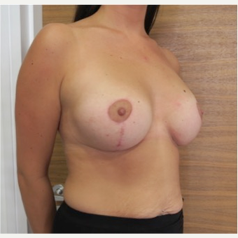 25-34 year old female treated with Breast Lift with Implants after 2989396