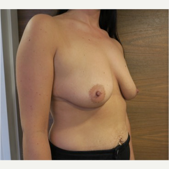 25-34 year old female treated with Breast Lift with Implants before 2989396