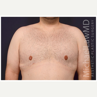 18-24 year old man treated with Male Breast Reduction after 3536518
