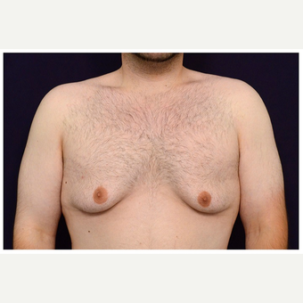 18-24 year old man treated with Male Breast Reduction before 3536518